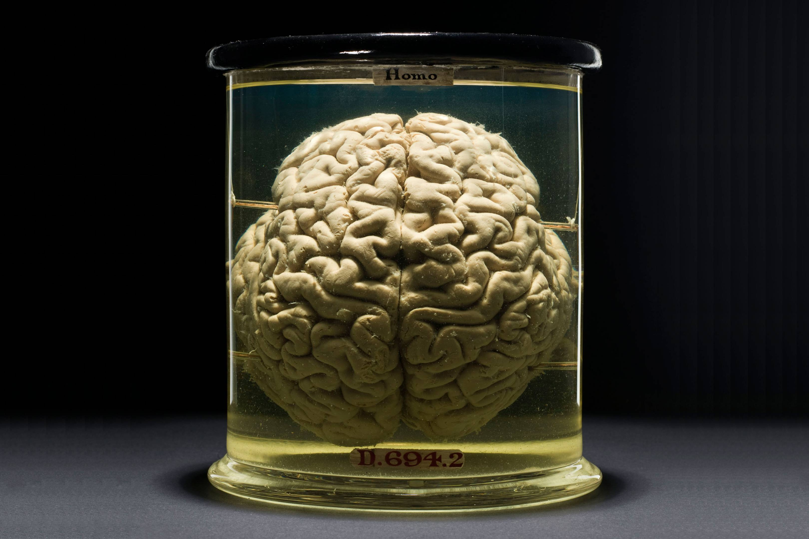 AI-powered brain emulation is changing our definition of death
