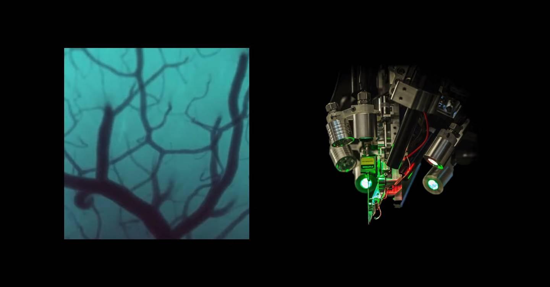 Wednesday briefing: Neuralink's brain-computer interface is preparing for human trials