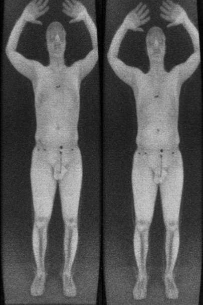 Scanner images showing a subject with no explosives (left) versus more than 200 grams of simulated plastic explosives molded around his torso, with the detonator hidden in his belly button