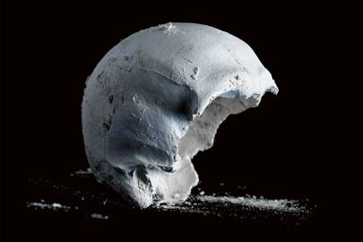The skull's job is to protect the brain, making it the hardest body part to deal with
