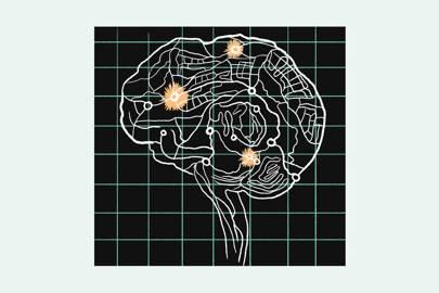 Brain Tingz - Magazine cover