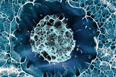Still life of a frozen stem cell