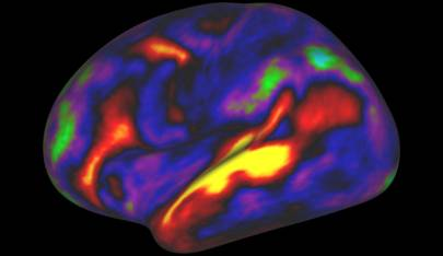 The image shows the pattern of brain activation (red, yellow) and deactivation (blue, green) in the left hemisphere when listening to stories while in the MRI scanner
