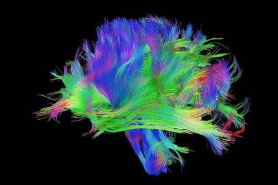 A map of neural circuits in the human brain
