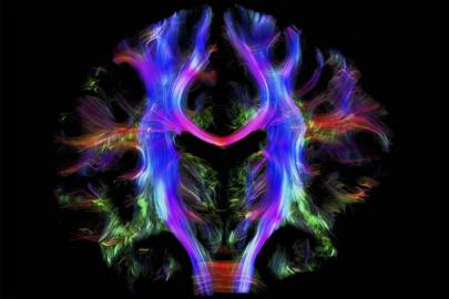 Healthy human brain from a young adult, tractography