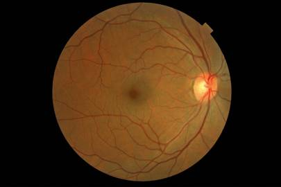 Crowd-analysers learn the main features of the eye, such as the optic nerve and macula; then they can spot the anomalies