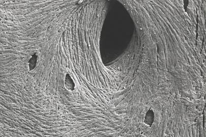 Surface of bone viewed under a microscope