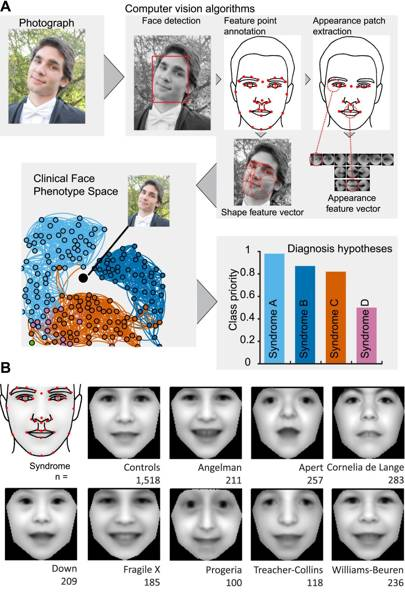 Algorithm identifies rare genetic disorders from family ...