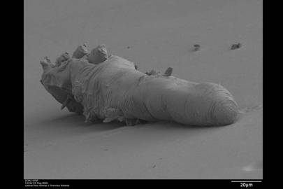 Yes, a male face mite has a penis. Here it is