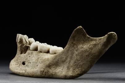 Jane's mandible