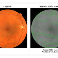 Verily AI retina scanning