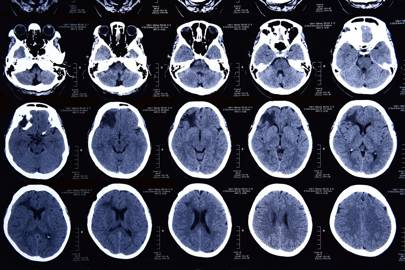Neural conditions in brain damaged patients can differ hugely from those in healthy subjects