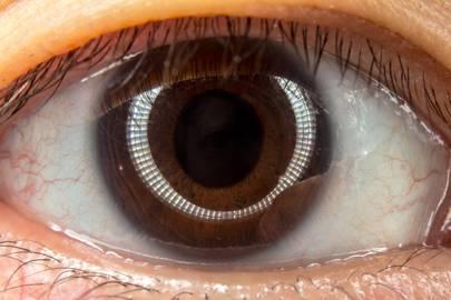 Big Ideas: Put digital displays on contact lenses