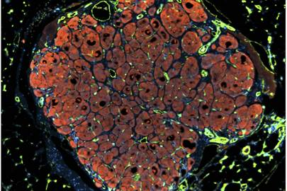 Engineering and implanting human liver tissue, LM