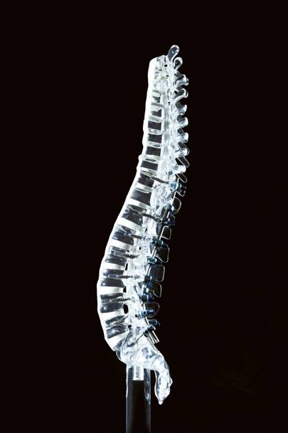 Spine system, year unknown