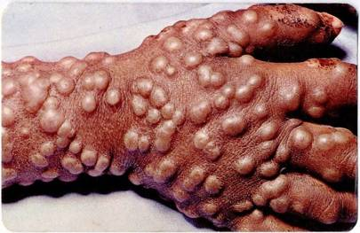 What Is Trypophobia And What Causes Fear Of Bubbles And Tiny Holes