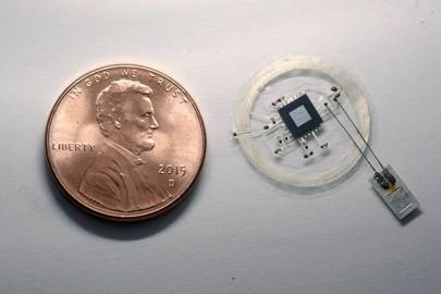 The small sensor connects to an embeddable wireless transmitter that lies on top of the skull.