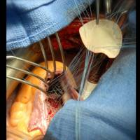 Repair of ventricular sepal defect