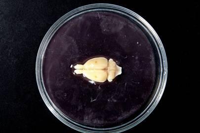 A rat brain