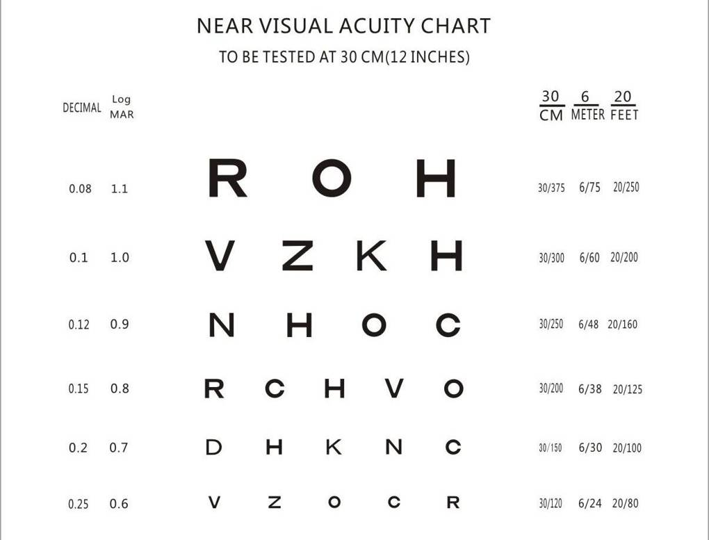 Ferdinand monoyer invented the eye chart and prescription diopter ferdinand monoyer invented the eye chart and prescription diopter wired uk nvjuhfo Gallery