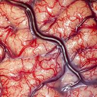 Intracranial recording for epilepsy