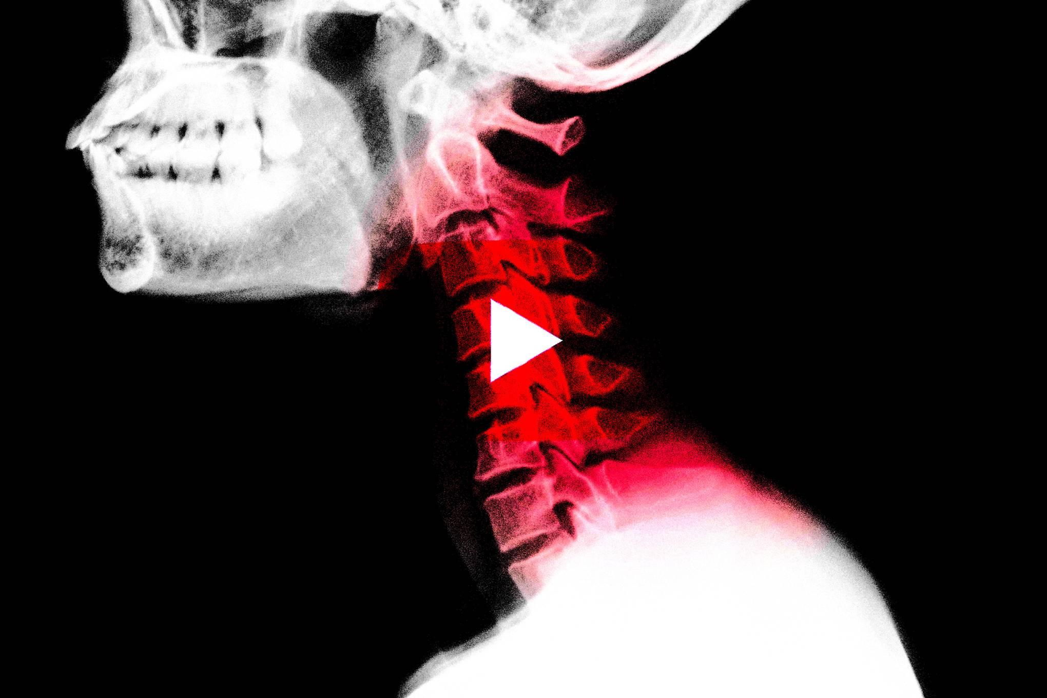 Doctor of Chiropractic Program