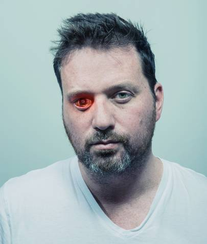 Gunshot victim Rob Spence and his eye-camera