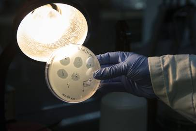 A technician holds an agar plate containing bacteriophage at a GangaGen Inc. laboratory in Bengaluru, India,