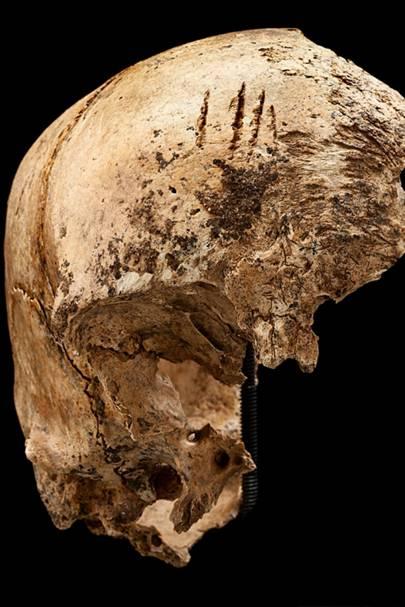 Jane's skull