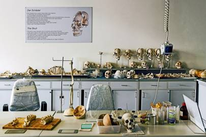 "The ""bone station"""