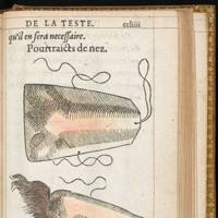 Hand coloured illustration of a prosthetic nose (1561) by Ambroise Paré