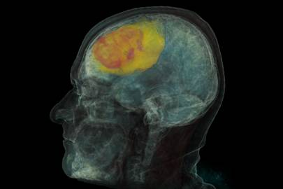 Microsoft is using machine learning and computer vision so radiologists can get a more detailed understanding of how a patient's tumour is progressing