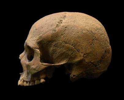 Ancient teeth reveal the Roman Empire was rife with malaria