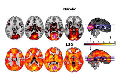 The brain becomes 'unified' when hallucinating on LSD