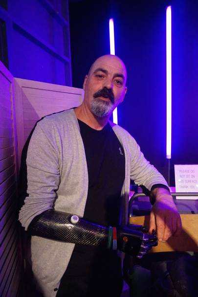 Nigel Ackland and his bebionic prosthetic arm