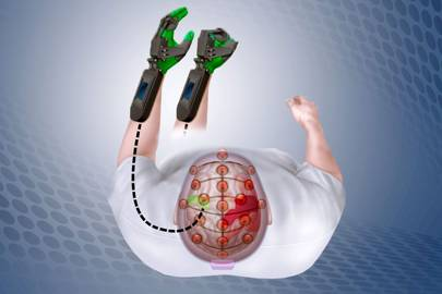 Mind control device for stroke patients